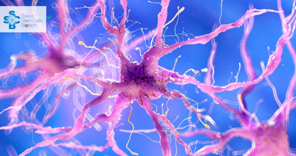 Iniezione-intracerebroventricolare-di-cellule-staminali-mesenchimali-da-sangue-cordonale-umano-in-pazienti-con-demenza-da-malattia-di-Alzheimer-uno-studio-clinico-di-fase-I.